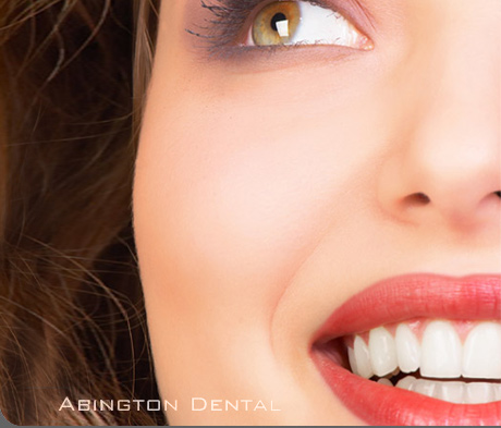 teeth whitening far cotton teeth whitening hardingstone